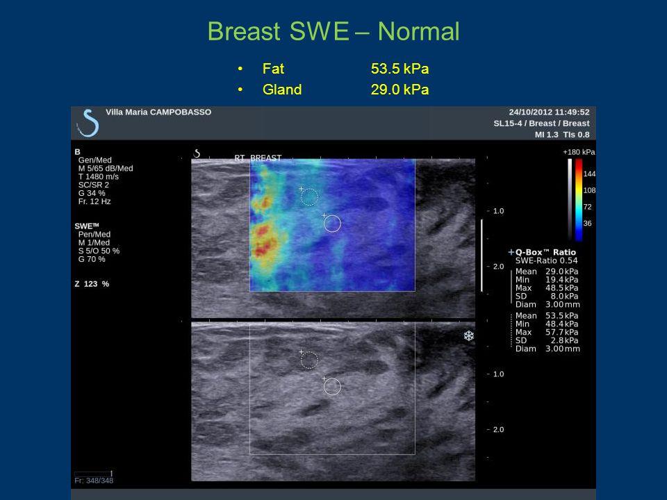 Breast SWE – Normal Fat53.5 kPa Gland29.0 kPa