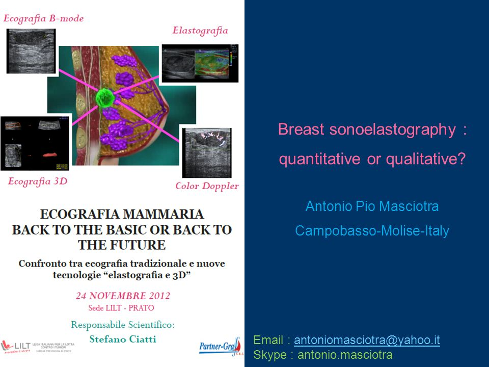 Breast sonoelastography : quantitative or qualitative? Antonio Pio Masciotra Campobasso-Molise-Italy Email : antoniomasciotra@yahoo.itantoniomasciotra