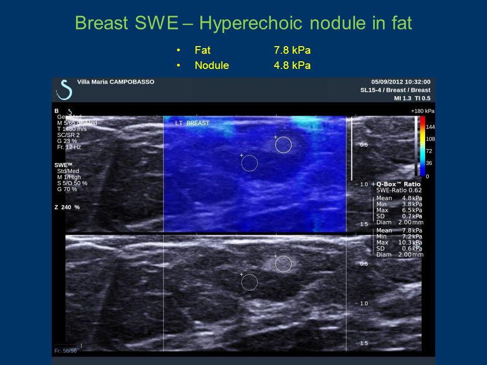 Breast SWE – Hyperechoic nodule in fat Fat7.8 kPa Nodule4.8 kPa