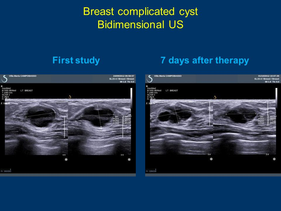 Breast complicated cyst Bidimensional US First study7 days after therapy