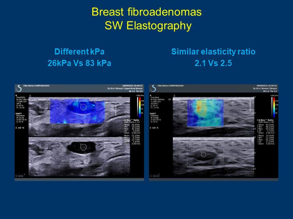 Breast fibroadenomas SW Elastography Different kPa 26kPa Vs 83 kPa Similar elasticity ratio 2.1 Vs 2.5