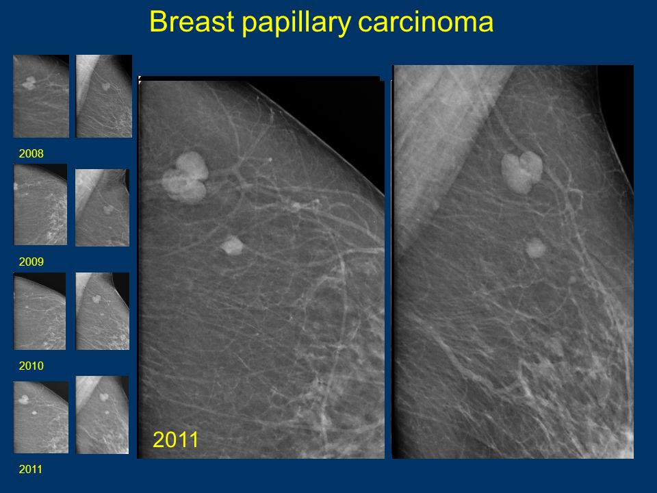 Breast papillary carcinoma 20082009 20102011 2008 2009 2010 2011