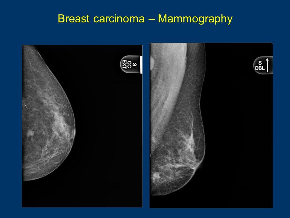 Breast carcinoma – Mammography BenignMalignant