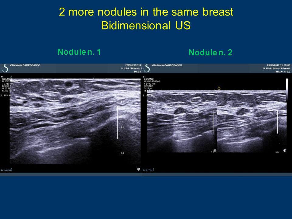 2 more nodules in the same breast Bidimensional US Nodule n. 1 Nodule n. 2