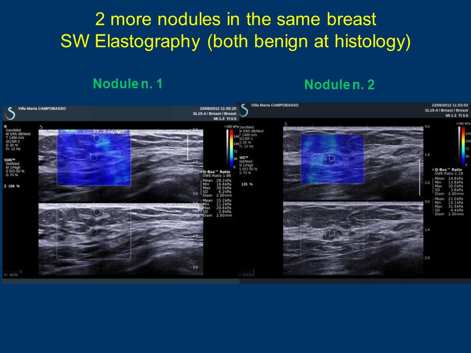 2 more nodules in the same breast SW Elastography (both benign at histology) Nodule n. 1 Nodule n. 2