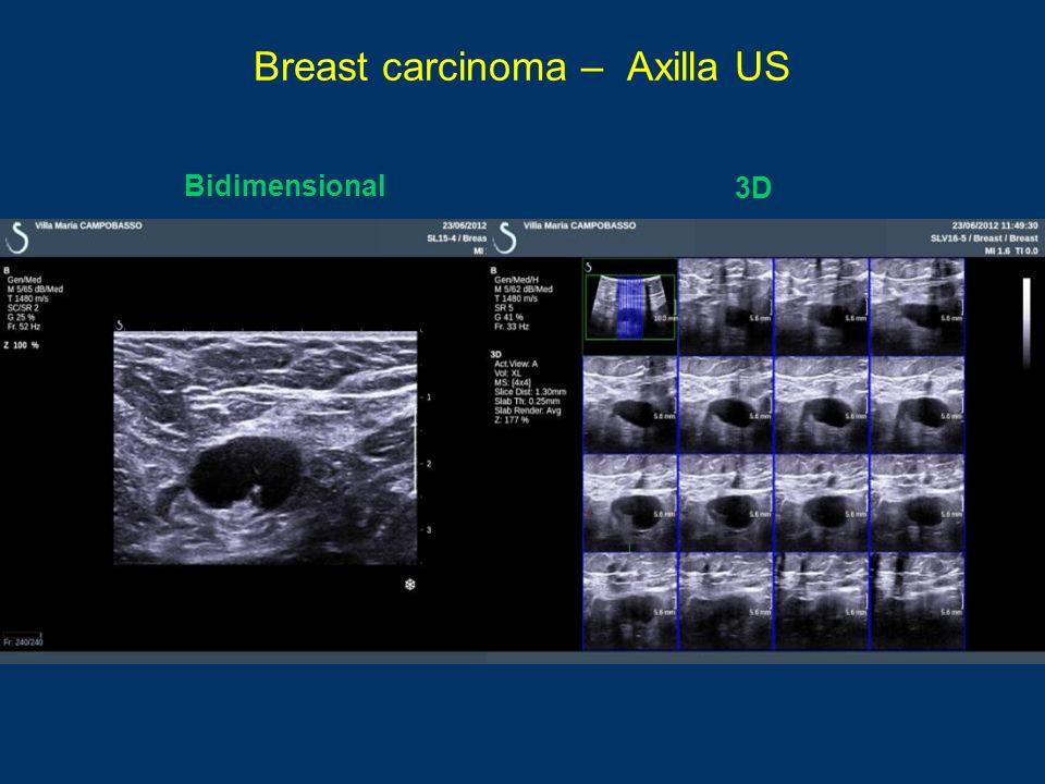 Breast carcinoma – Axilla US Bidimensional 3D
