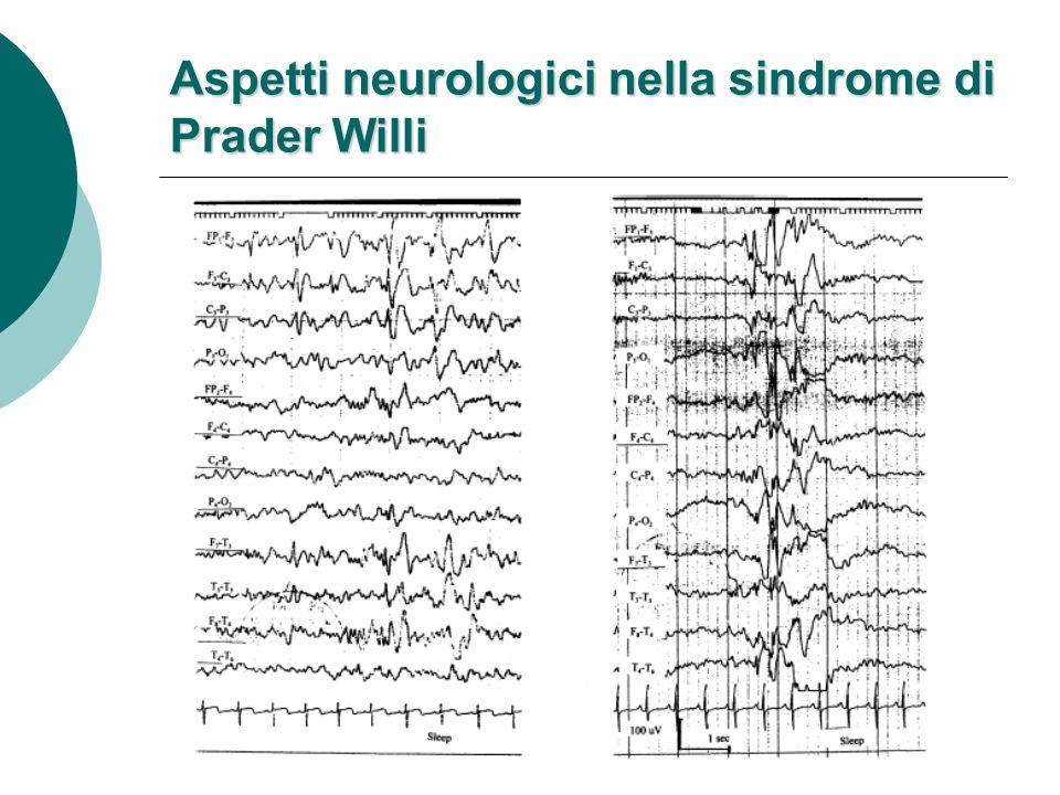 Disturbi del sonno ipersonnia (Manni et al., 2001) ipersonnia (Manni et al., 2001) apnee ostruttive e centrali (Nixon & Brouillette, 2002) apnee ostruttive e centrali (Nixon & Brouillette, 2002) risposte ventilatorie anomale allipossia e allipercapnia risposte ventilatorie anomale allipossia e allipercapnia ipoventilazione alveolare in sonno (Menendez, 1999) ipoventilazione alveolare in sonno (Menendez, 1999)
