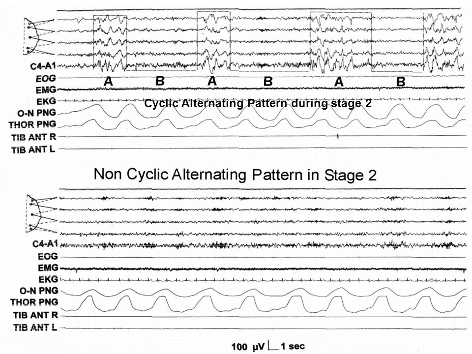 A1 - High voltage slow waves (EEG synchrony) with no more than 20% of fast low amplitude rhythms (EEG desynchrony) A2 - Slow and fast EEG rhythms with at least 50% of phase A occupied by EEG synchrony and 20% 50% by EEG desynchrony A3 - The rapid low voltage rhythms take on > 70% of the phase A duration, the amount of slow high amplitude waves is 70% of the phase A duration, the amount of slow high amplitude waves is < 30%