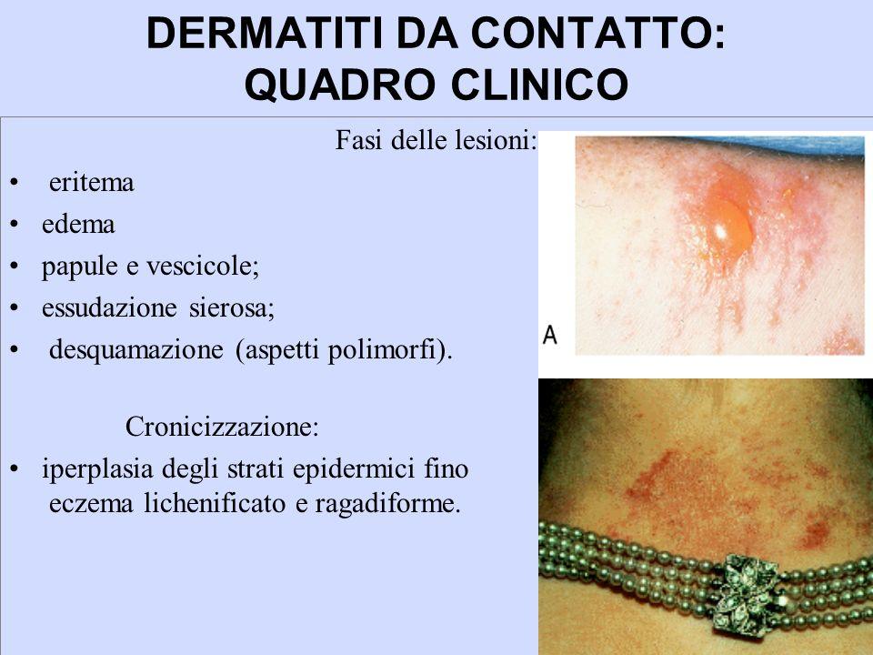 DERMATITI DA CONTATTO: QUADRO CLINICO Fasi delle lesioni: eritema edema papule e vescicole; essudazione sierosa; desquamazione (aspetti polimorfi). Cr