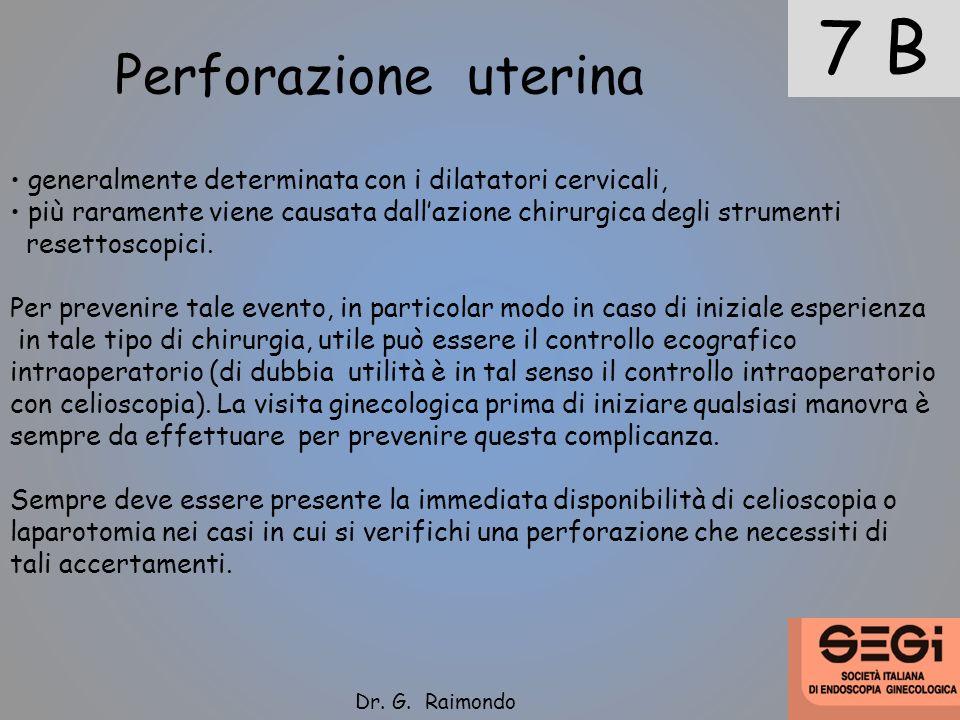 7 B Perforazione uterina generalmente determinata con i dilatatori cervicali, più raramente viene causata dallazione chirurgica degli strumenti resett