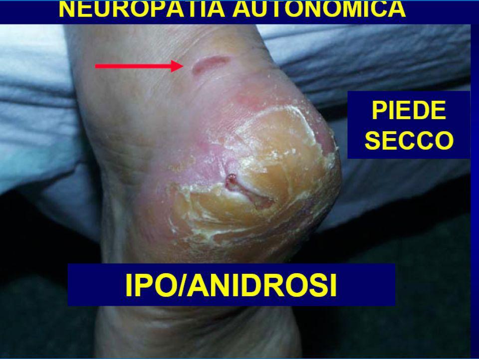 Determinazione del rischio di sviluppare unulcera del piede Neuropatia sensitiva assente Neuropatia sensitiva Neuropatia sensitiva e segni di Vasculopatia Periferica e/o Deformità del Piede Pregressa Ulcera 0 Ogni 12 mesi 1 Ogni 6 mesi 2 Ogni 3 mesi 3 Ogni 1-3 mesi