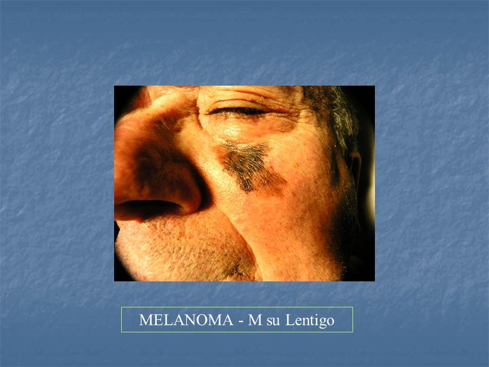 MELANOMA - M su Lentigo