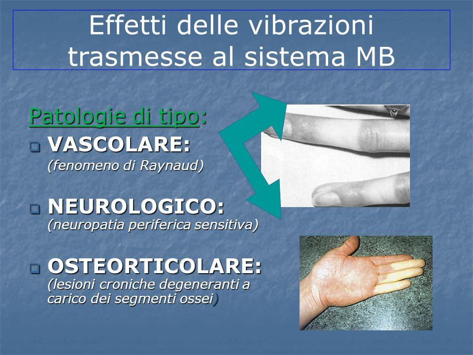Patologie di tipo: VASCOLARE: VASCOLARE: (fenomeno di Raynaud) NEUROLOGICO: (neuropatia periferica sensitiva) NEUROLOGICO: (neuropatia periferica sens