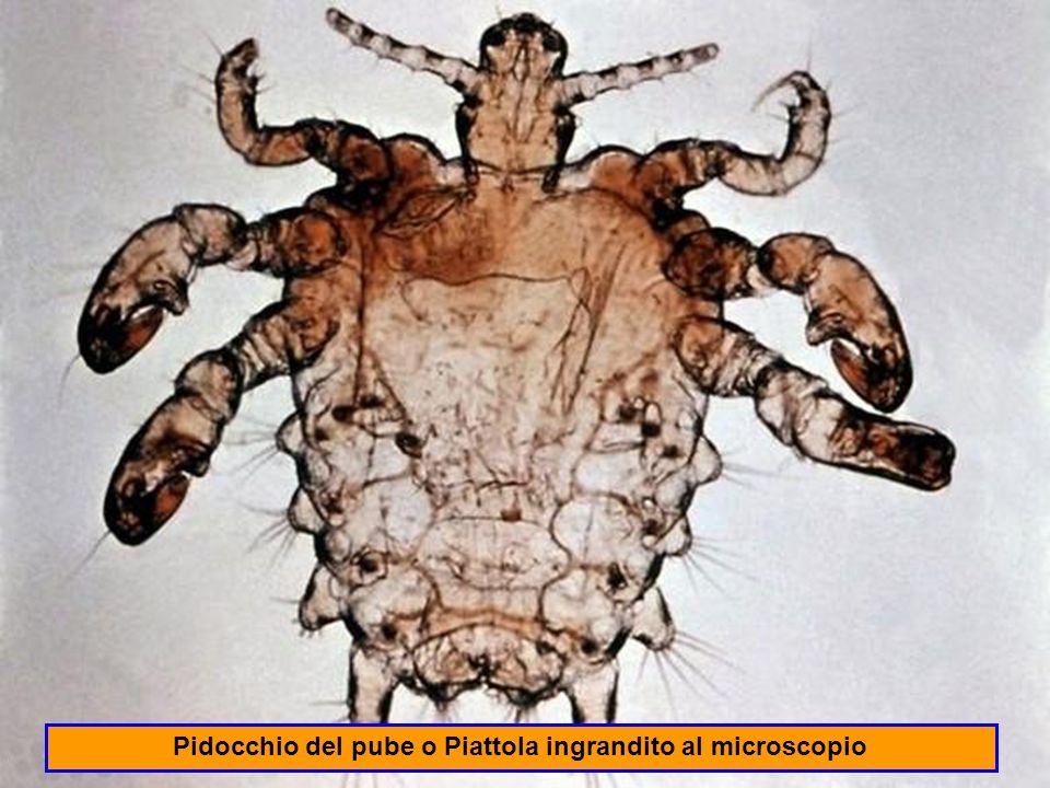 La Zanzara è un insetto che vive in aree umide e malsane per cui nella specie umana può trasmettere malattie quali l anemia, la talassemia, la dengue, lencefalite, la febbre gialla, la malaria e la poliartrite.