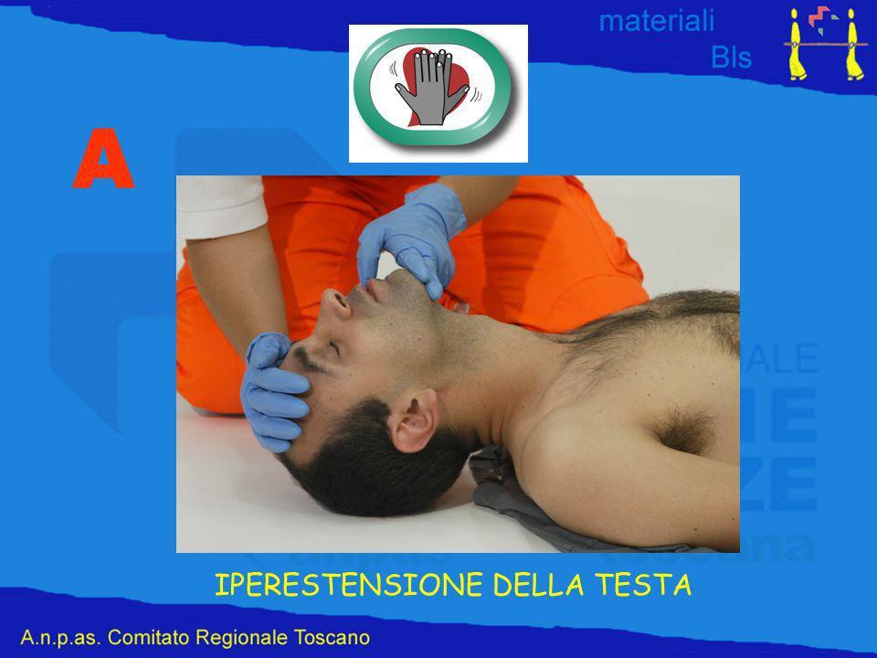 IPERESTENSIONE DELLA TESTA