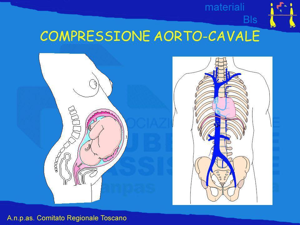 COMPRESSIONE AORTO-CAVALE