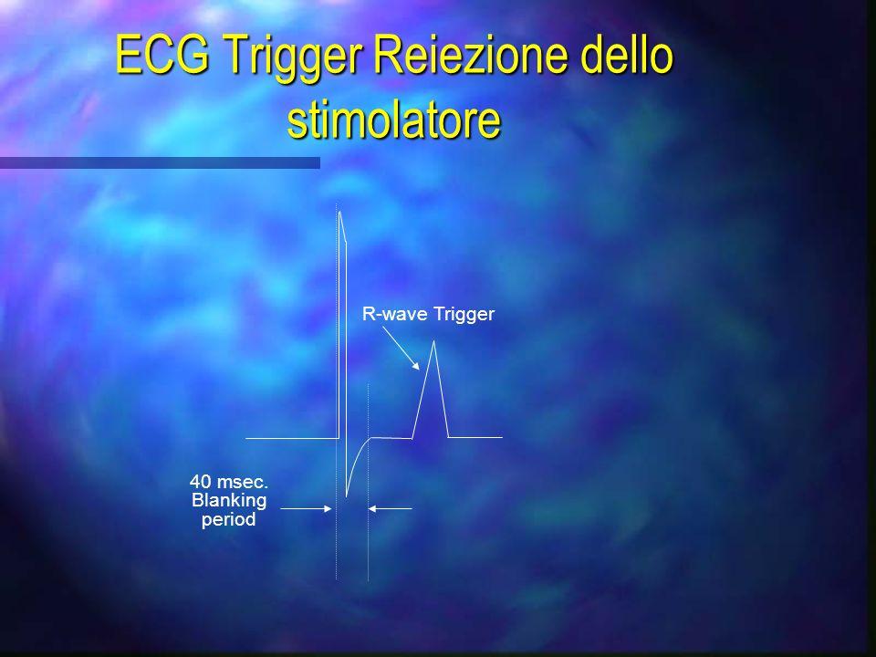 ECG Trigger n Londa R è levento di sincronismo n 120mV n Indicazione di sincronismo valido: diamante lampeggiante n Selezione da fonte diretta o ester