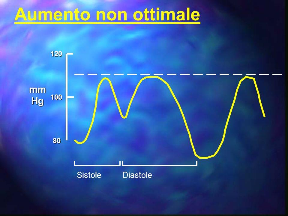 A = ciclo cardiaco completo B = Pressione di fine diastole non assistita C = Pressione sistolica non assistita D = Aumento diastolico E = Pressione di