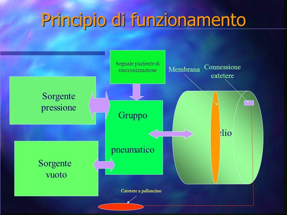 Principio di funzionamento elio Sorgente vuoto Sorgente pressione Gruppo pneumatico Membrana Connessione catetere Catetere a palloncino Segnale paziente di sincronizzazione