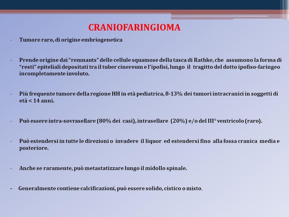 CRANIOFARINGIOMA -Tumore raro, di origine embriogenetica -Prende origine dai remnants delle cellule squamose della tasca di Rathke, che assumono la fo