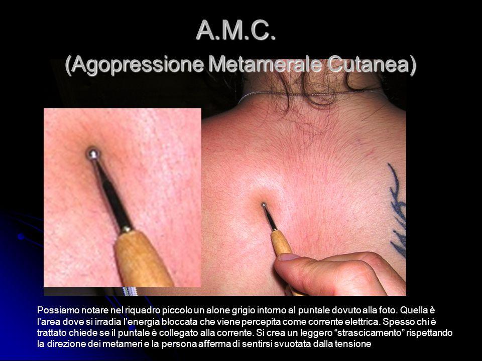 A.M.C. (Agopressione Metamerale Cutanea) Possiamo notare nel riquadro piccolo un alone grigio intorno al puntale dovuto alla foto. Quella è larea dove