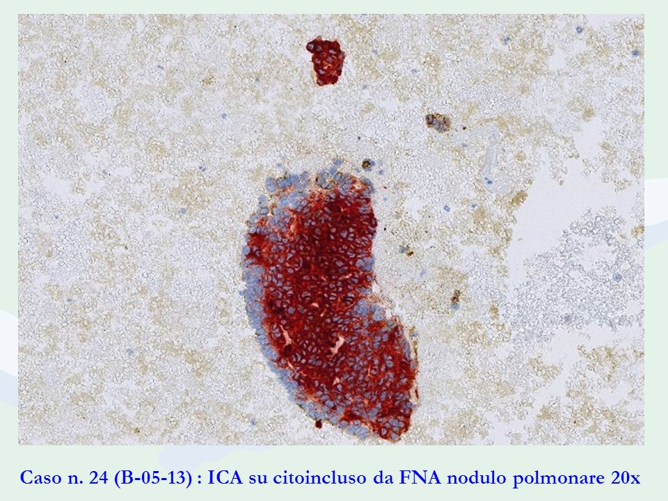 Caso n. 24 (B-05-13) : ICA su citoincluso da FNA nodulo polmonare 20x