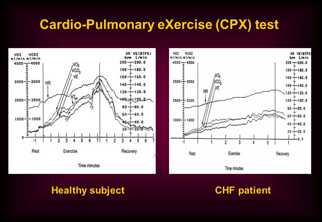 Cardio-Pulmonary eXercise (CPX) test Healthy subjectCHF patient