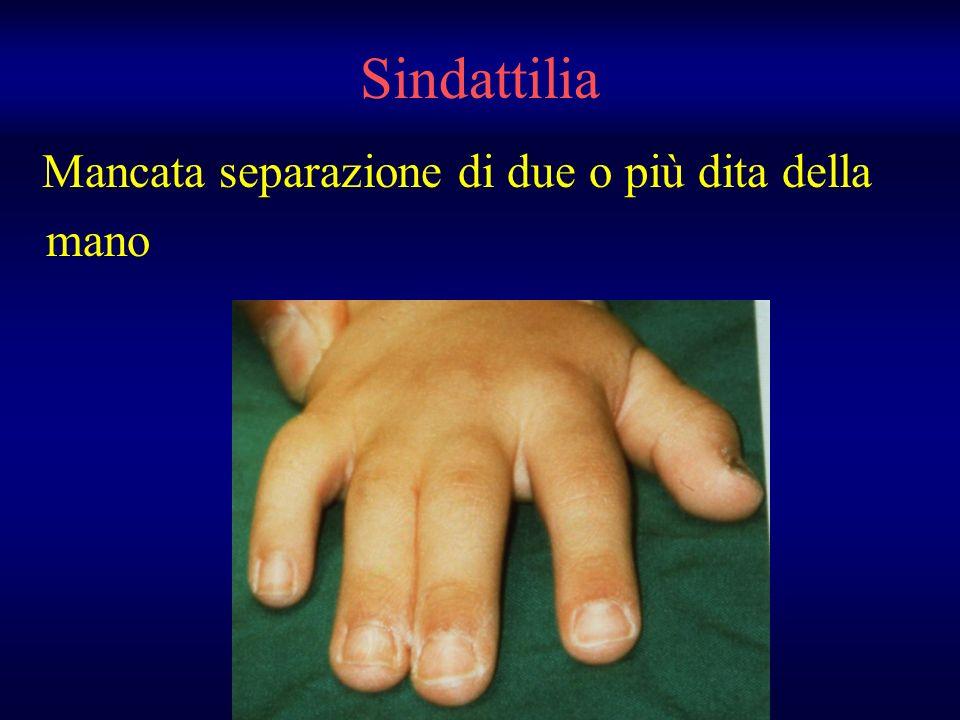 Sindattilia Mancata separazione di due o più dita della mano