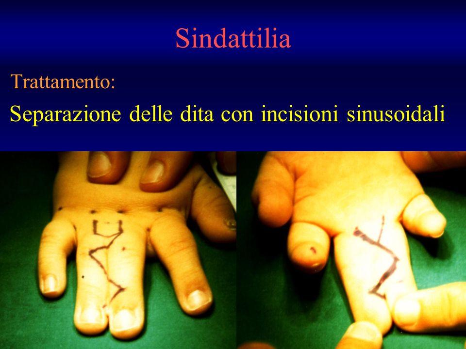 Sindattilia Trattamento: Separazione delle dita con incisioni sinusoidali