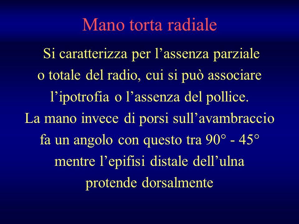 Si caratterizza per lassenza parziale o totale del radio, cui si può associare lipotrofia o lassenza del pollice. La mano invece di porsi sullavambrac