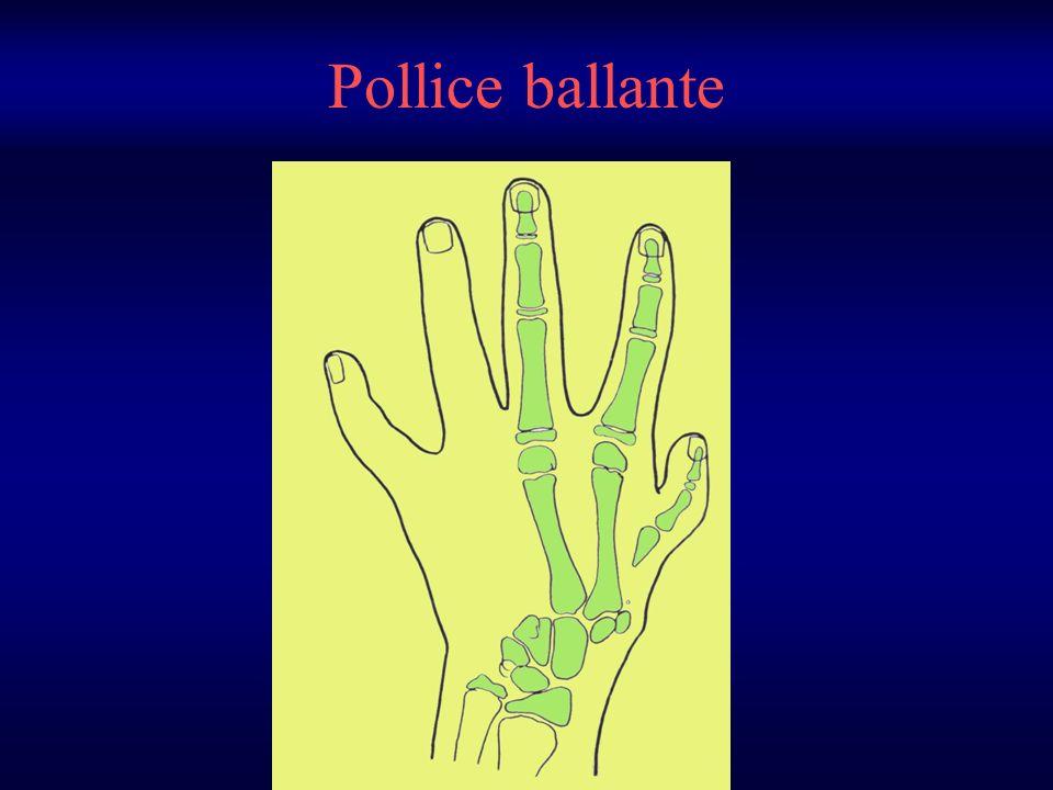 Pollice ballante