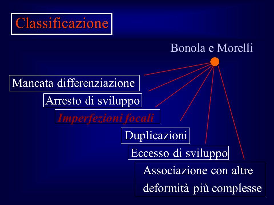Bonola e Morelli Mancata differenziazione Arresto di sviluppo Imperfezioni focali Duplicazioni Eccesso di sviluppo Associazione con altre deformità pi