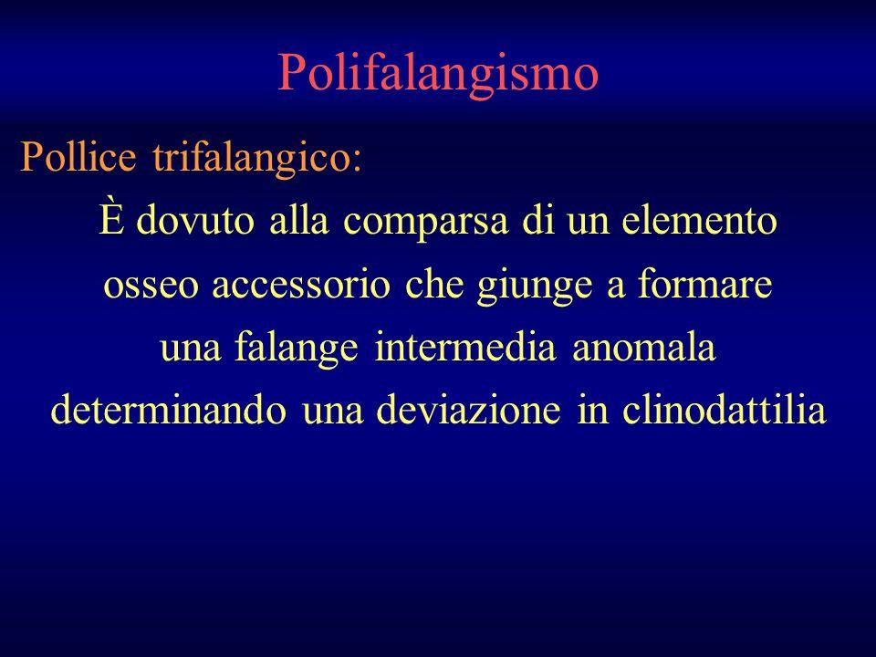 Polifalangismo Pollice trifalangico: È dovuto alla comparsa di un elemento osseo accessorio che giunge a formare una falange intermedia anomala determ