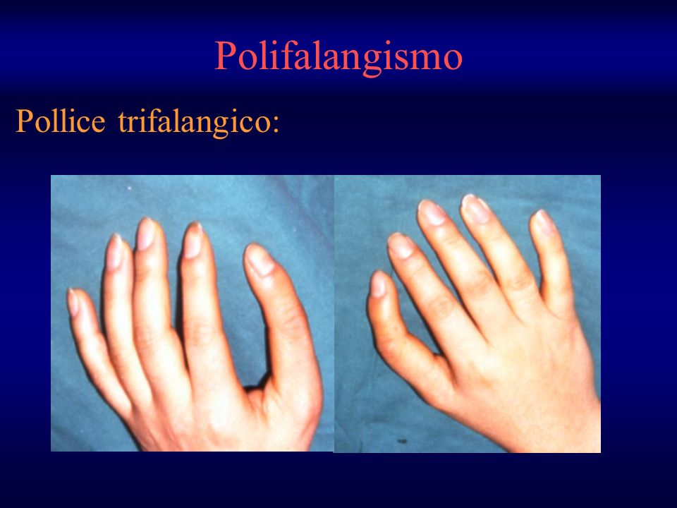 Polifalangismo Pollice trifalangico: