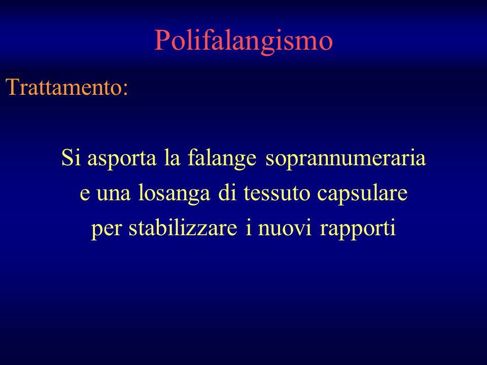 Polifalangismo Trattamento: Si asporta la falange soprannumeraria e una losanga di tessuto capsulare per stabilizzare i nuovi rapporti
