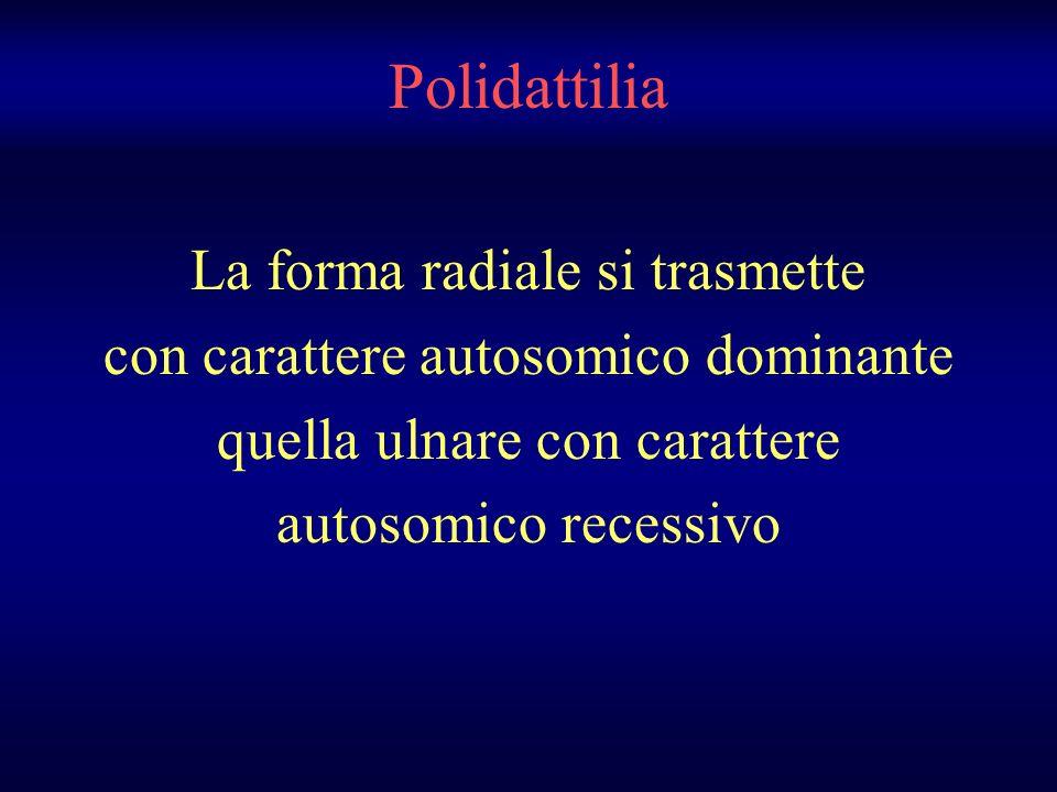 Polidattilia La forma radiale si trasmette con carattere autosomico dominante quella ulnare con carattere autosomico recessivo