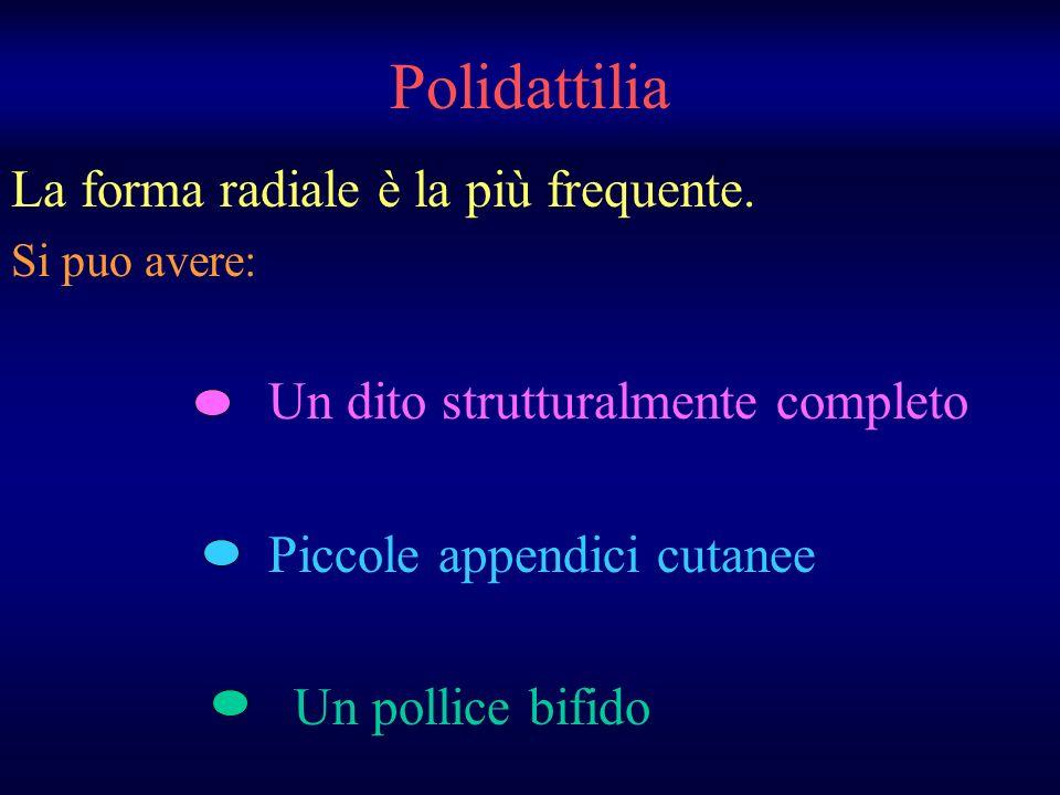 Polidattilia La forma radiale è la più frequente. Si puo avere: Un dito strutturalmente completo Piccole appendici cutanee Un pollice bifido
