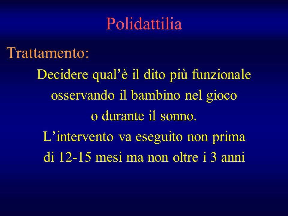 Polidattilia Trattamento: Decidere qualè il dito più funzionale osservando il bambino nel gioco o durante il sonno. Lintervento va eseguito non prima