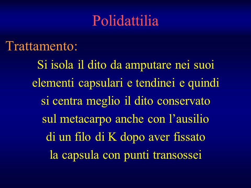 Polidattilia Trattamento: Si isola il dito da amputare nei suoi elementi capsulari e tendinei e quindi si centra meglio il dito conservato sul metacar