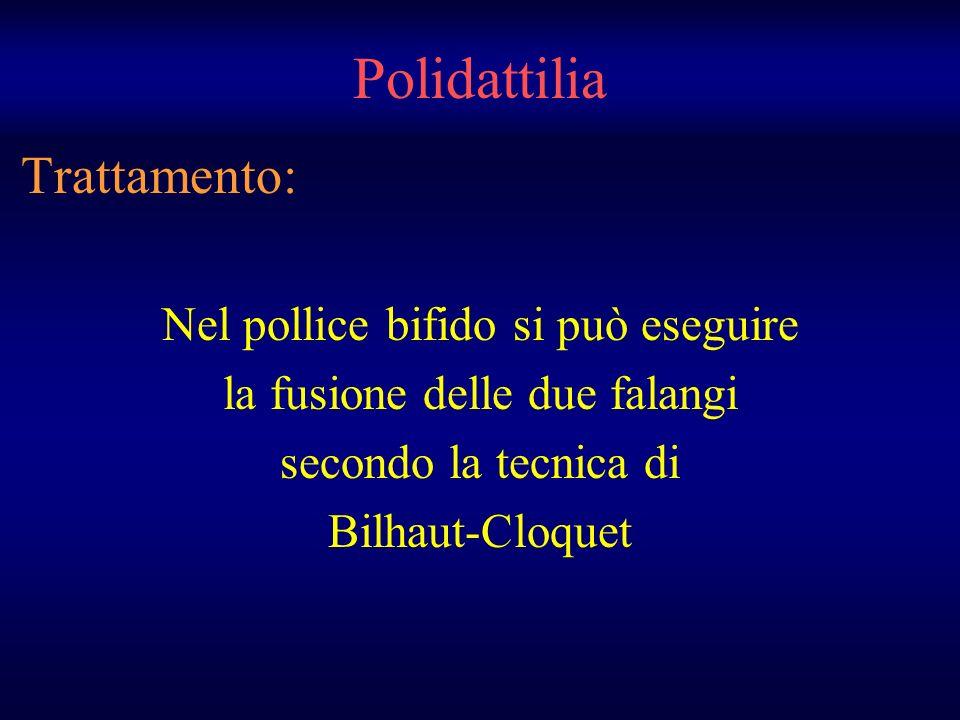 Trattamento: Nel pollice bifido si può eseguire la fusione delle due falangi secondo la tecnica di Bilhaut-Cloquet