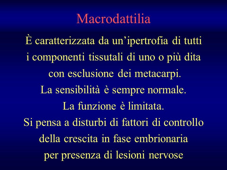 Macrodattilia È caratterizzata da unipertrofia di tutti i componenti tissutali di uno o più dita con esclusione dei metacarpi. La sensibilità è sempre