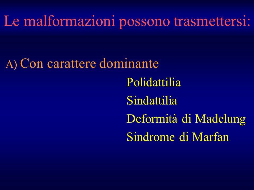 Le malformazioni possono trasmettersi: A) Con carattere dominante Polidattilia Sindattilia Deformità di Madelung Sindrome di Marfan