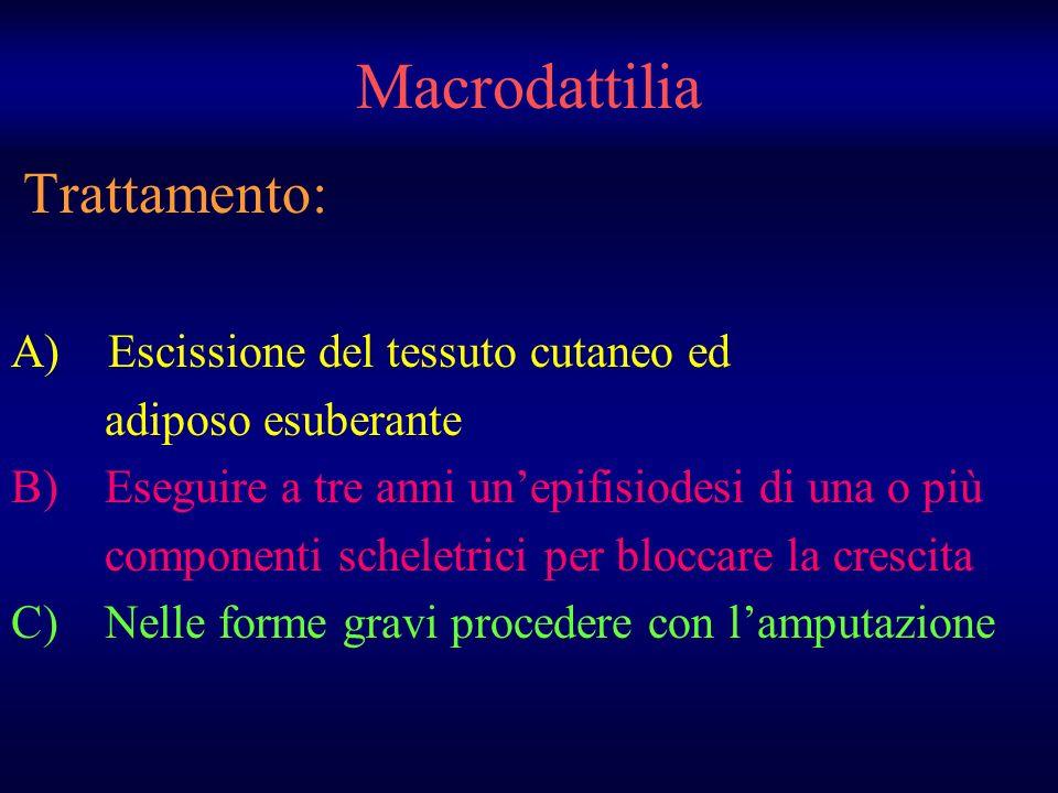 Macrodattilia Trattamento: A) Escissione del tessuto cutaneo ed adiposo esuberante B) Eseguire a tre anni unepifisiodesi di una o più componenti schel