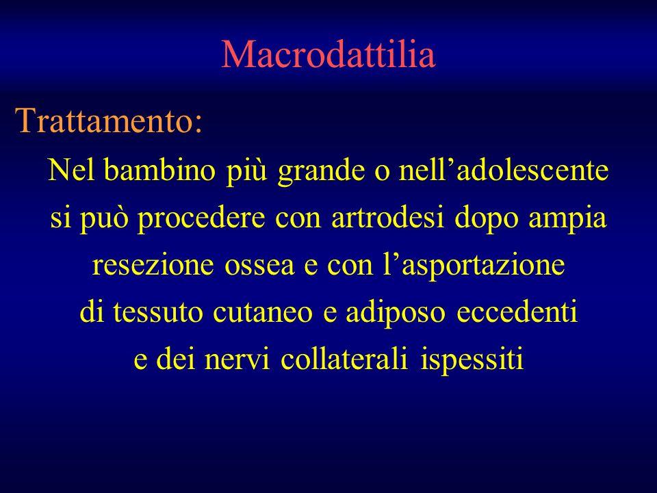 Macrodattilia Trattamento: Nel bambino più grande o nelladolescente si può procedere con artrodesi dopo ampia resezione ossea e con lasportazione di t