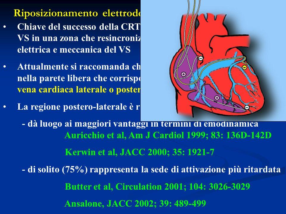 Riposizionamento elettrodo VS: cercare la concordanza Chiave del successo della CRT è il posizionamento dellelettrodo VS in una zona che resincronizzi