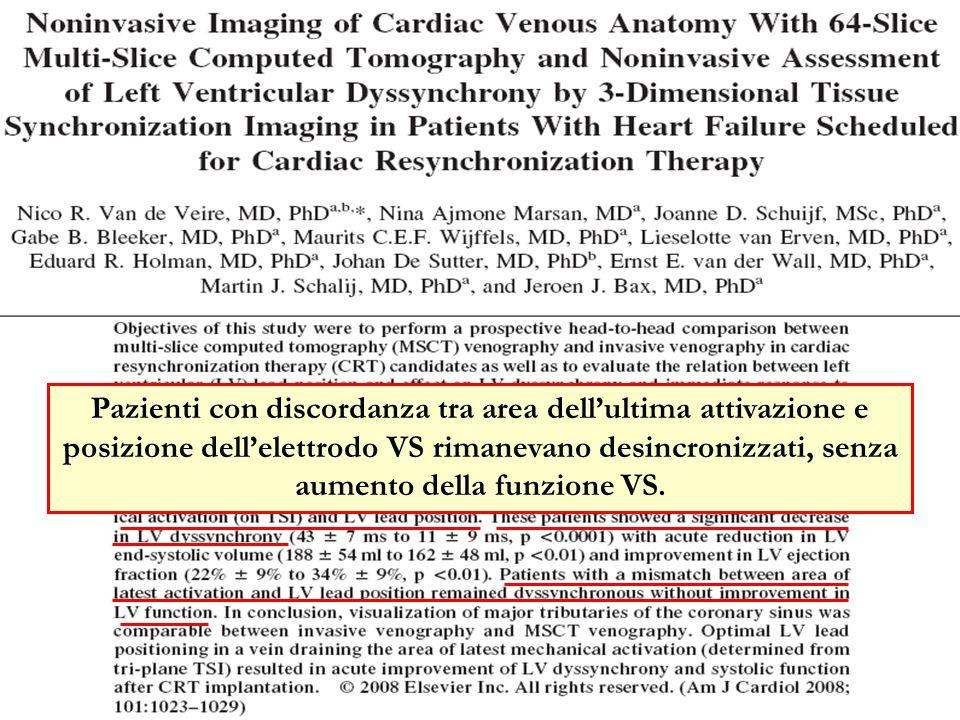 Pazienti con discordanza tra area dellultima attivazione e posizione dellelettrodo VS rimanevano desincronizzati, senza aumento della funzione VS.