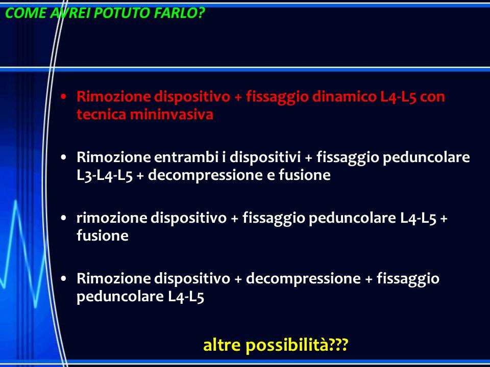 Rimozione dispositivo + fissaggio dinamico L4-L5 con tecnica mininvasiva Rimozione entrambi i dispositivi + fissaggio peduncolare L3-L4-L5 + decompres