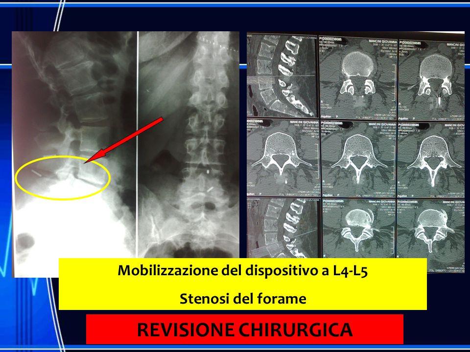 Mobilizzazione del dispositivo a L4-L5 Stenosi del forame REVISIONE CHIRURGICA