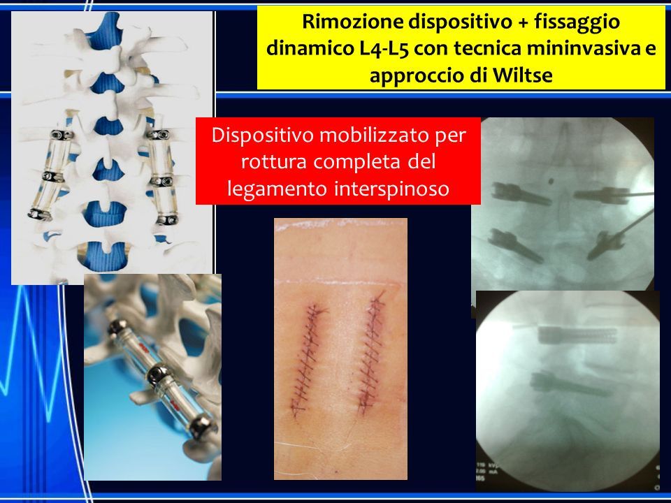 Rimozione dispositivo + fissaggio dinamico L4-L5 con tecnica mininvasiva e approccio di Wiltse Dispositivo mobilizzato per rottura completa del legame