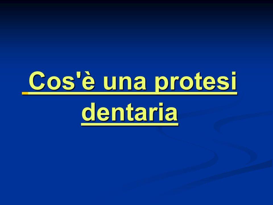 Cos è una protesi dentaria Cos è una protesi dentaria